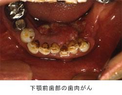 下顎前歯部の歯肉がん