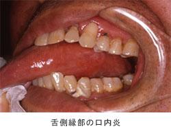 舌側縁部の口内炎