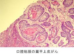 口腔粘膜の扁平皮がん
