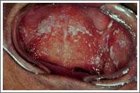 真菌の付着した口腔内(カビの一種)